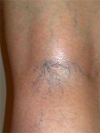 Венотоники при варикозе ног отзывы