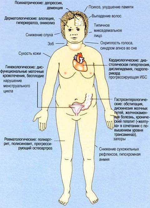 Схема лечения нарушений менструального цикла