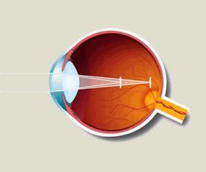 Купить оправу для зрения в интернет-магазине
