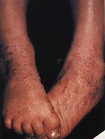 Лечение экземы перекисью водорода неумывакин
